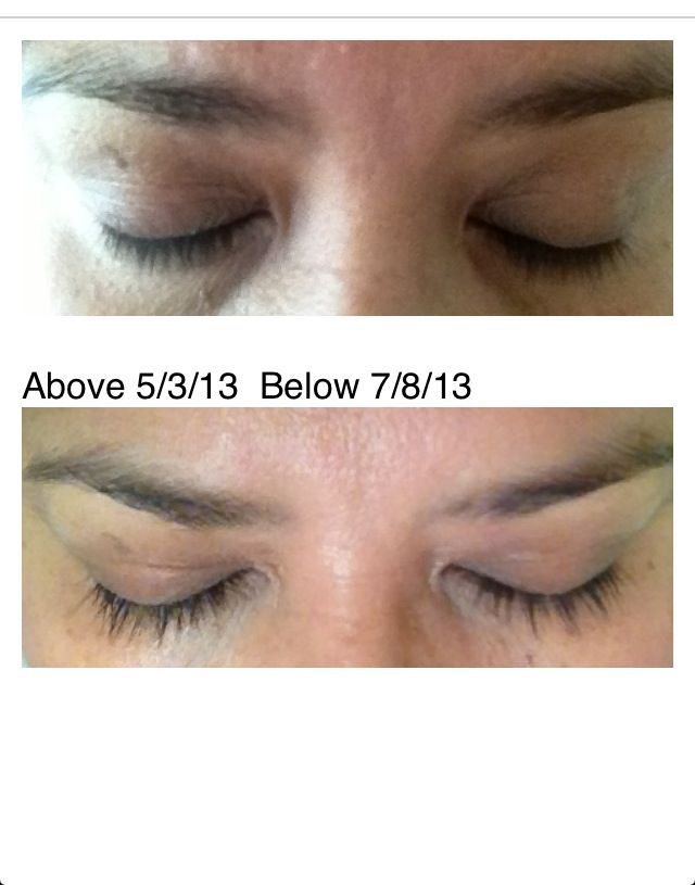 Growing Eyelashes With Careprost I Will Show Final Results At Week