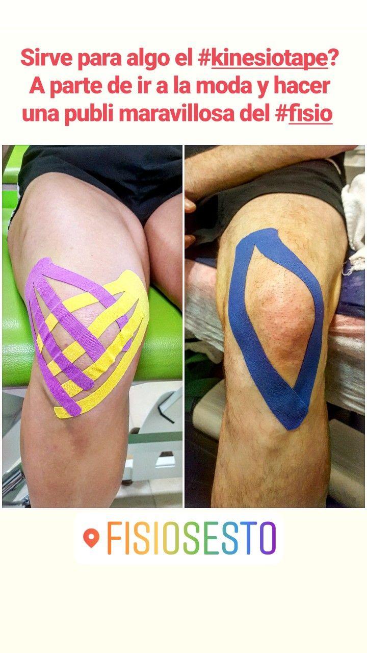 Kinesiotape En Lesiones Traumatológicas Y Deportivas Rodillas Vendaje Neuromuscular Posturas Corporales