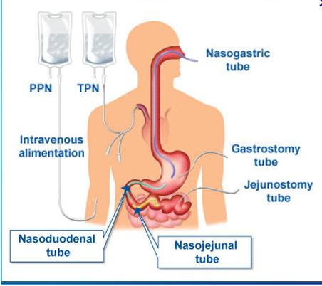 Parenteral & Enteral Nutrition;  Tube Feeding-Types of Non-oral Feeding