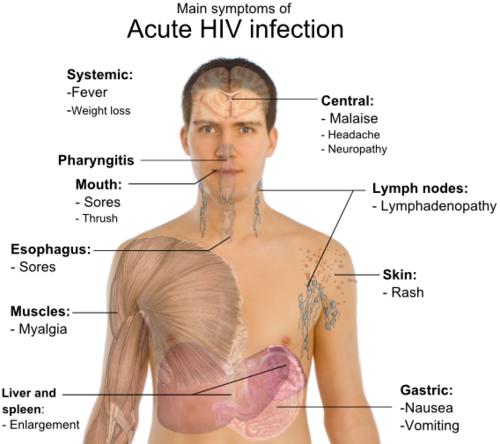 HAPPY NEW YEAR! | Nursing | Hiv aids symptoms, Hiv symptoms