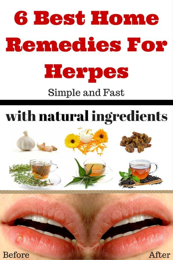 Alternatve treatment for herpes