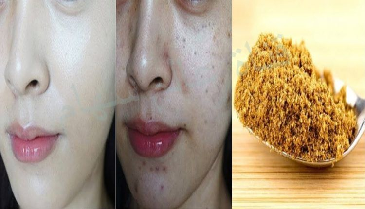 طبايع لحبوب إزالة بقع الحبوب من الوجه ازالة اثار الحبوب من الوجه نهائيا تصفية الوجه من اثار الحبوب