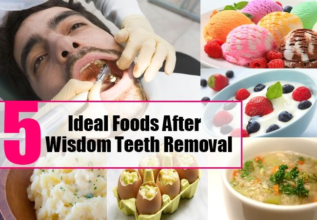 5 Ideal Foods After Wisdom Teeth Removal | Wisdom teeth food, Wisdom teeth  removal food, After wisdom teeth removal