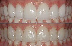 Bl1 Bl3 Tooth Shade Porcelain Veneers Cosmetic Dentistry Teeth