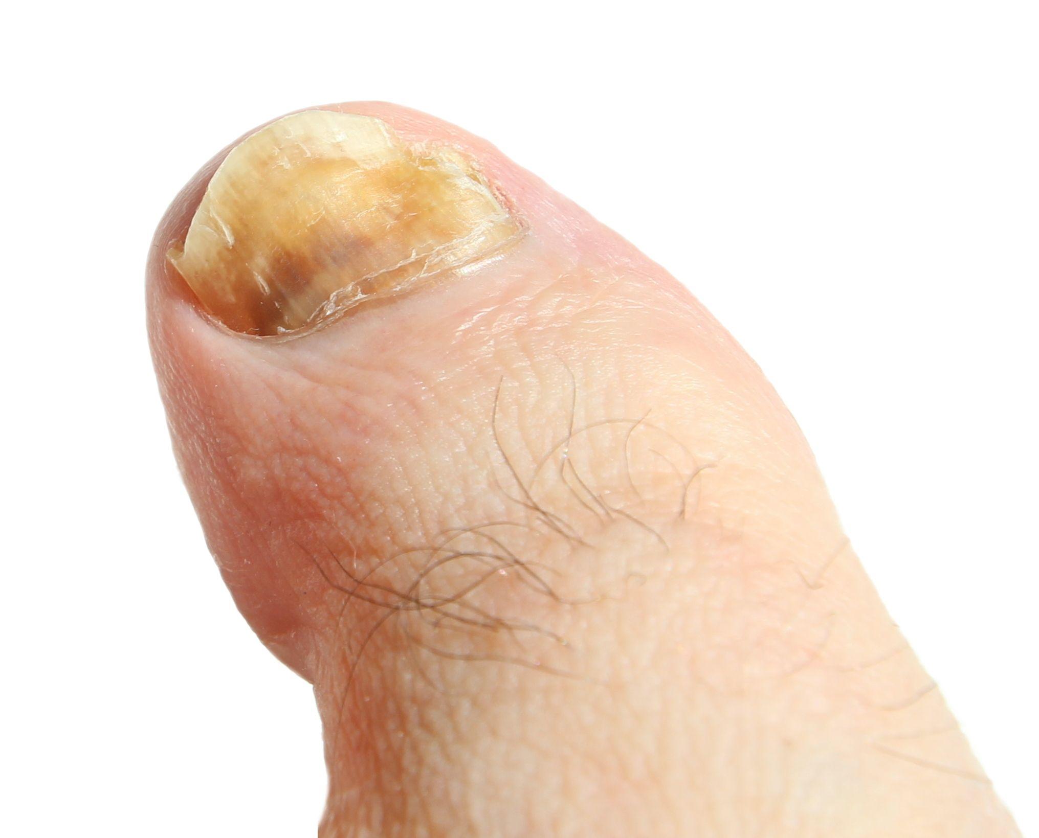Fungus Under Toenail Lotrimin Toenail Fungal Infection Black | Cure ...