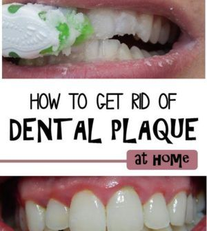 How to Remove Plaque and Tartar from Teeth at Home  #lifestyle  #solution