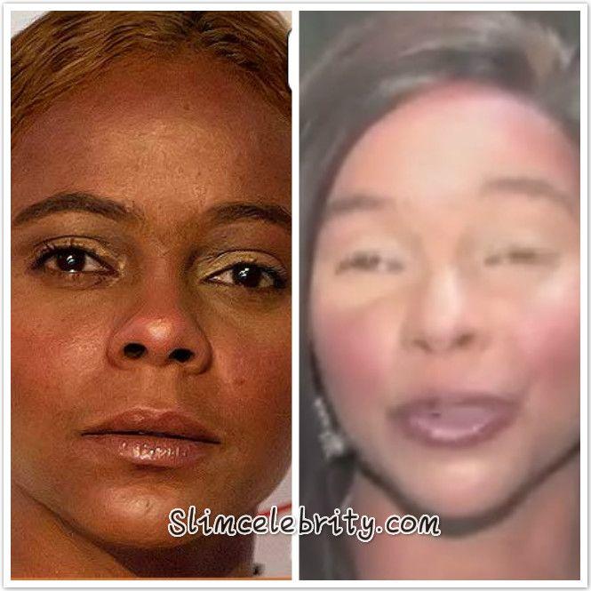 facial skin lightening