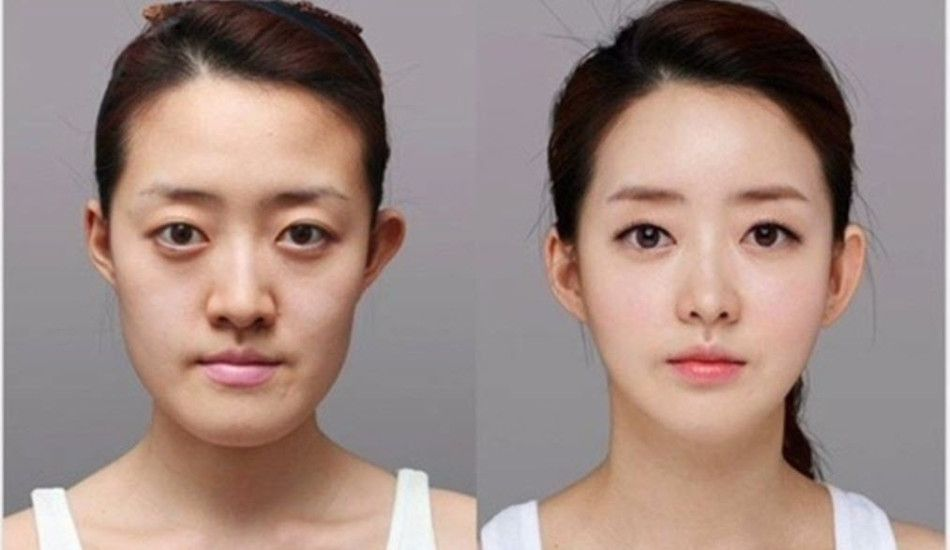 How asian nose job should be done accurately korean