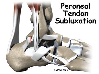 Peroneal Tendon Subluxation | Houston Methodist | RN | Ankle