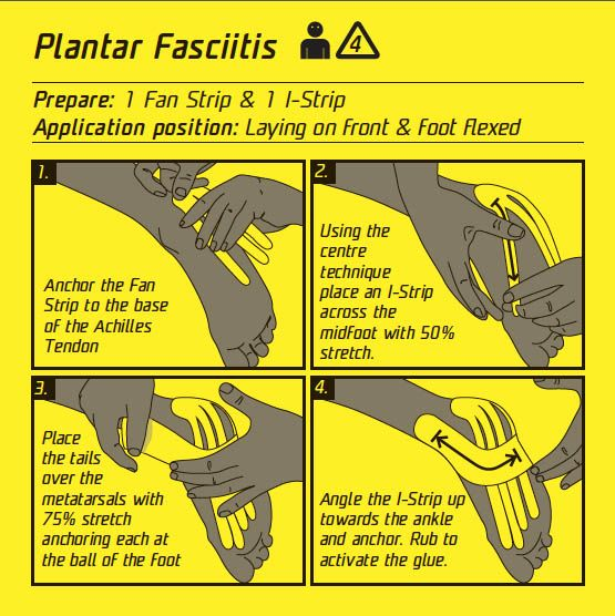plantar fascia taping instructions