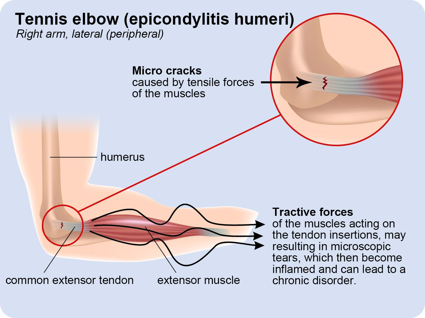 are you suffering from the so called tennis elbow or golfer s elbow this is a description of whats really happening to your muscles [ 1400 x 1046 Pixel ]