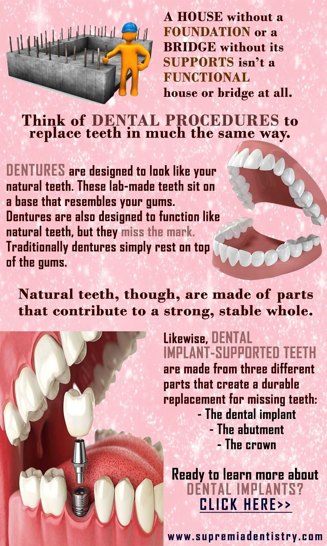 Accidental tooth implant los angeles teethwhiteningtips