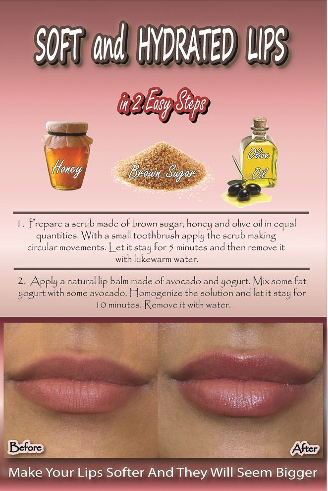 How To Get Soft And Hydrated Lips Naturally – at Home#home #hydrated #lips #naturally #soft