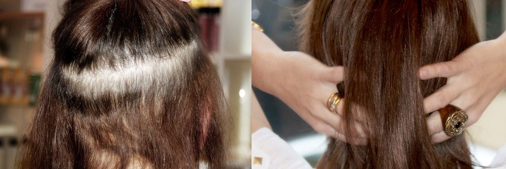Fine Hair Female Pattern Baldness This Form Of Hair Loss Is