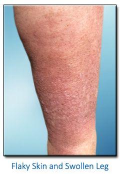 Venous insufficiency in legs - Venous insufficiency is a ...