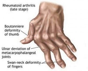 Penyakit sendi artritis