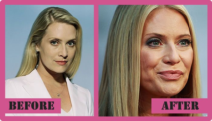 after plastic before Emily surgery procter