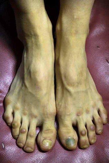 Tits Feet Susan Walden  nude (68 images), iCloud, underwear