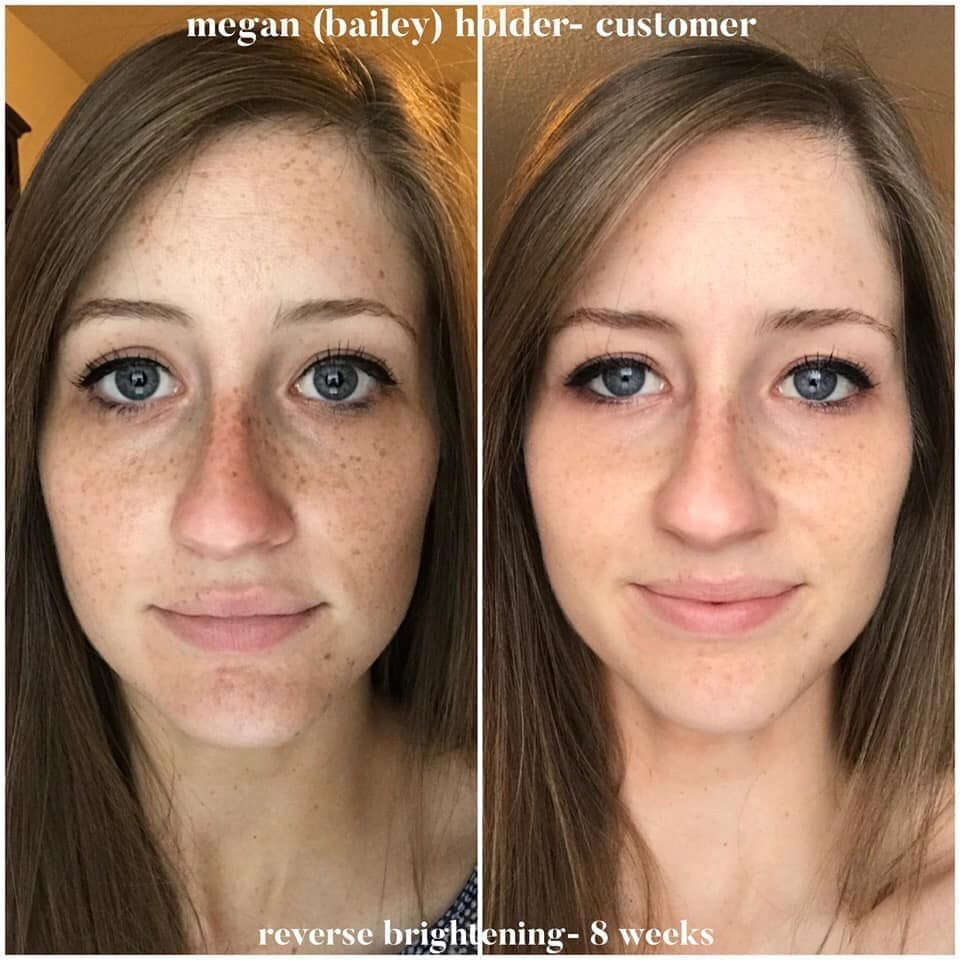Wish You Could Brighten Up Your Complexion And Even Your Skin Tone You Can With Reverse Rodan And Fields Reverse Skin Skin Care
