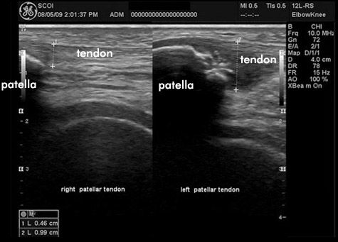 Tendonitis Ultrasound Humor Ultrasound Radiology