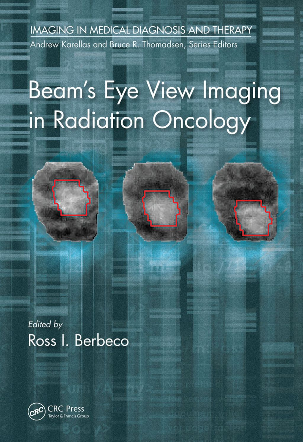 Beam S Eye View Imaging In Radiation Oncology Ebook