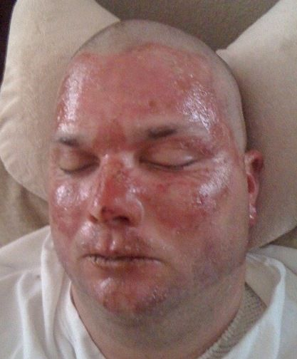 degree facial burns Third