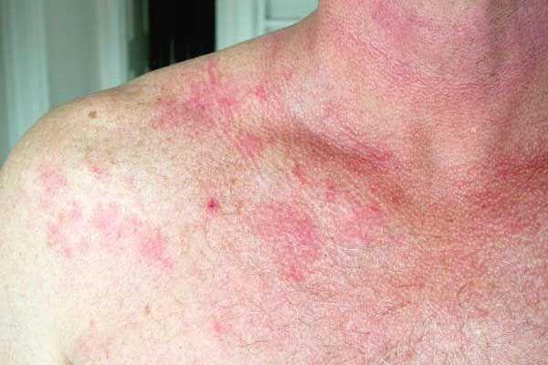 How Mold Causes A Rash