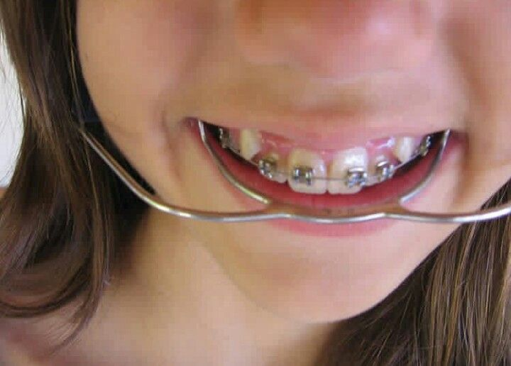 Pin On Beautiful Braces