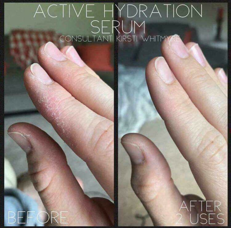 Dry, cracked hands?? Cuticles? Arms? Legs? NO PROBLEM!! Hydration\'s ...