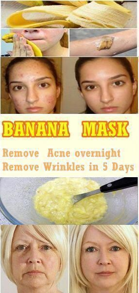 Photo of Remove acne in only one nigght and Get Rid of wrinkles in 5 days. #HowToRemoveBr… – Masque – Masque
