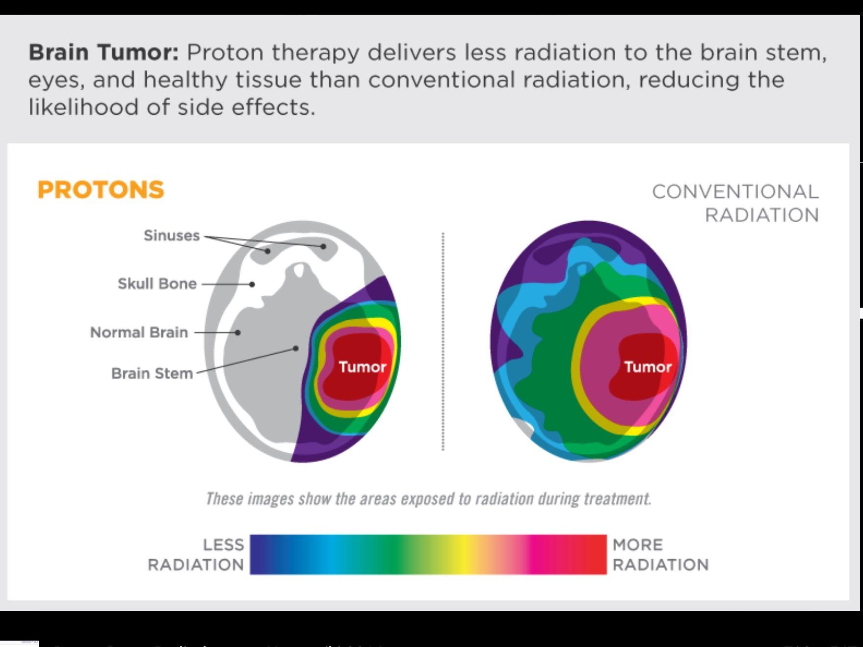 Areas exposed to radiation proton versus photon wikipedia areas exposed to radiation proton versus photon wikipedia ccuart Images