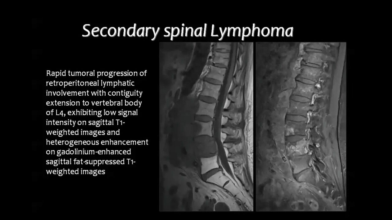 Secondary spinal lymphoma