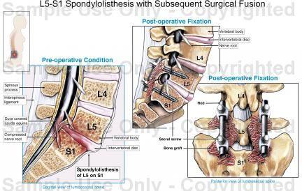 l5 s1 spondylolisthesis treatment