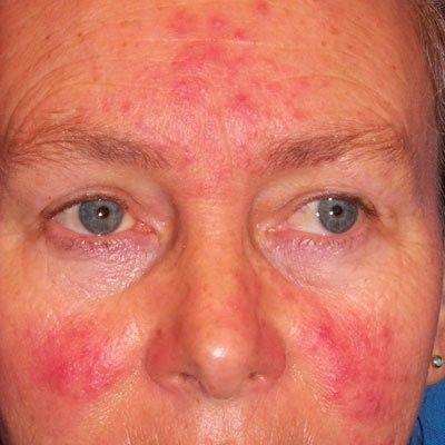 ocular rosacea behandling