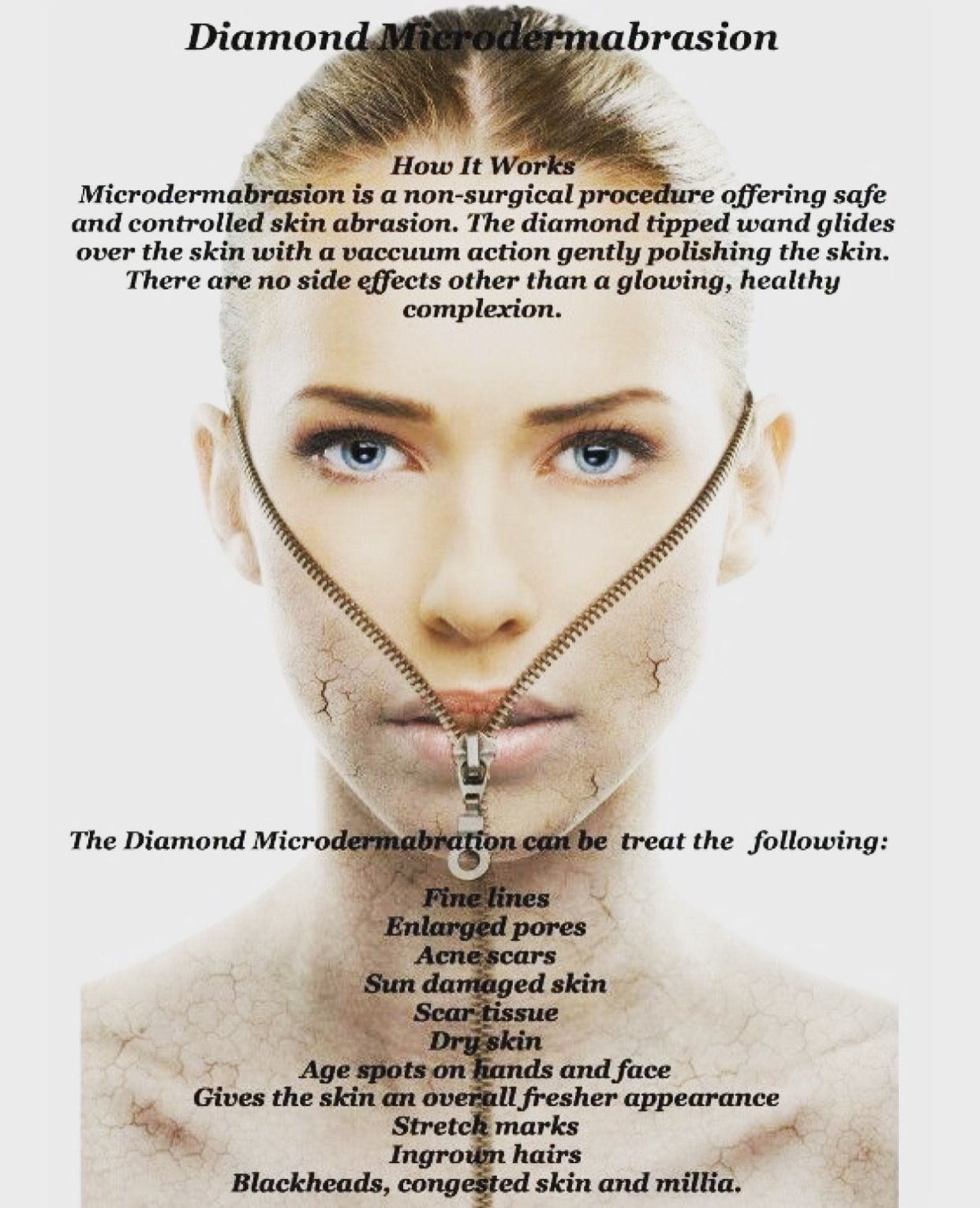 Pin By The Beauty Spot On Treatment Information Microdermabrasion Facial Skin Care Facial Aesthetics