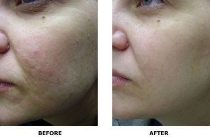 how to clear pigmentation marks