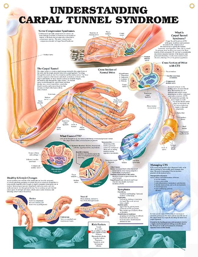Understanding Carpal Tunnel Syndrome 20x26 Carpal Tunnel Anatomy