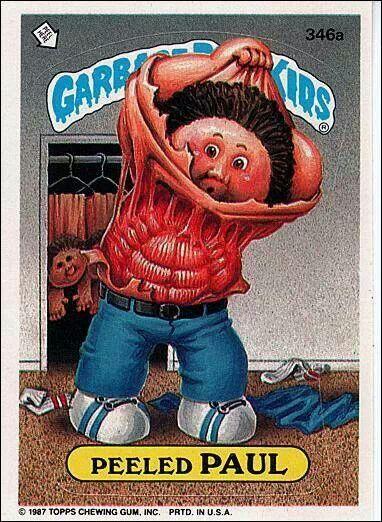 Garbage Pail Kid Peeled Paul Garbage Pail Kids Garbage Pail Kids Cards Kids Stickers