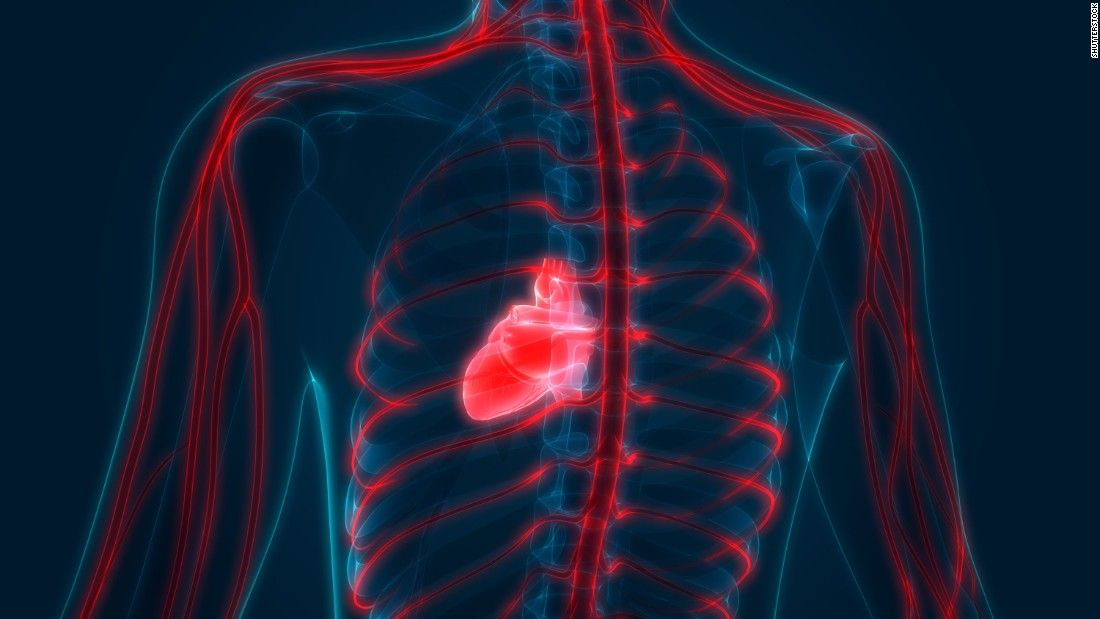 Boy takes bite of hot dog -- and his heart stops | Brugada syndrome ...