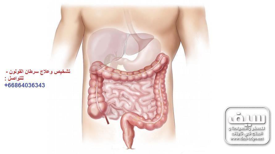 سرطان القولون الأعراض والفحص والتشخيص والعلاج في تايلاند
