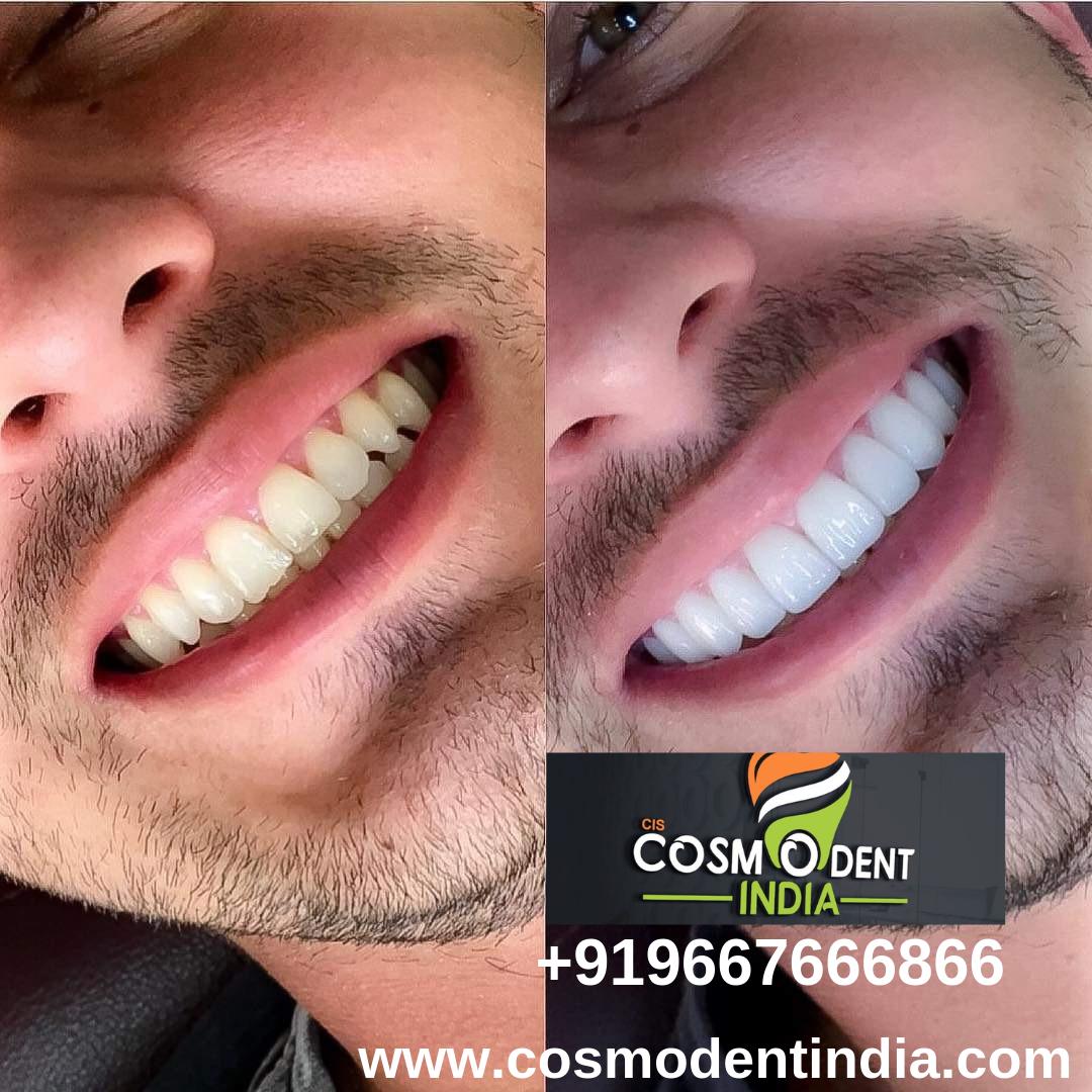 Dental veneers in india  Dental veneers, Dental cosmetics, Dental