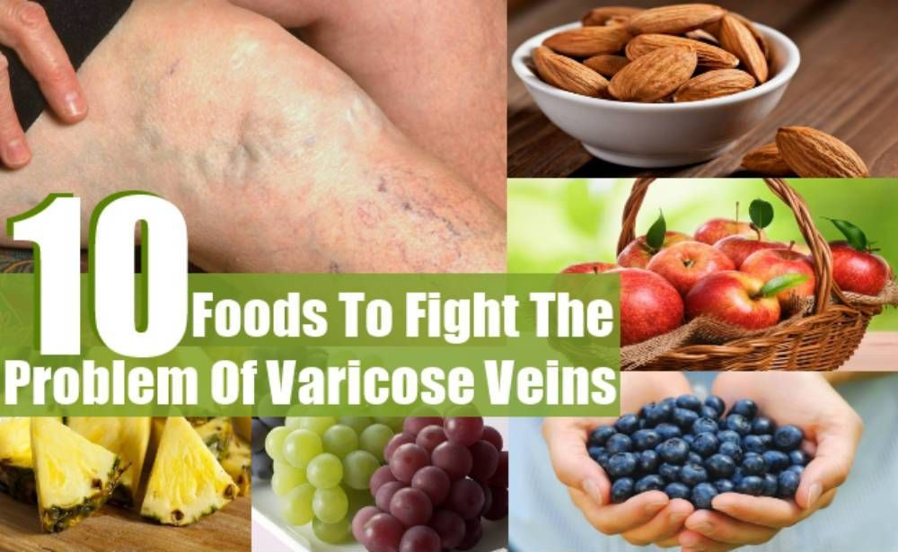 Foods To Fight The Problem Of Varicose Veins