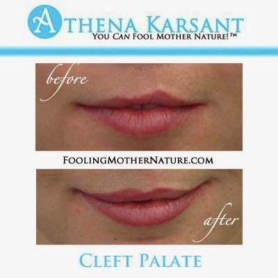 If you have a cleft palate cleft palate surgery scar for Can you tattoo your lips