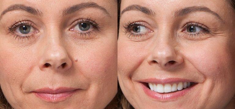 moles Removing facial