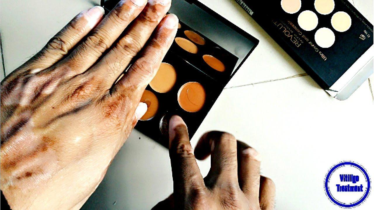 Makeup For Vitiligo L Hands Face Lips Leg All Skin Type Cover Solution Vitiligo Vitiligo Makeup Makeup