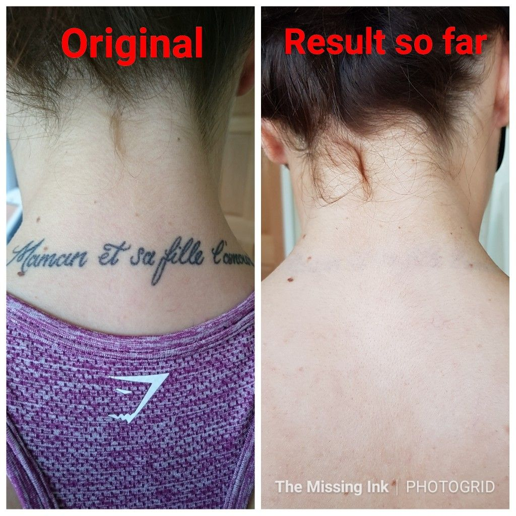 Dark Tattoo On The Neck Laser Tattoo Laser Tattoo Removal Tattoo Removal Process