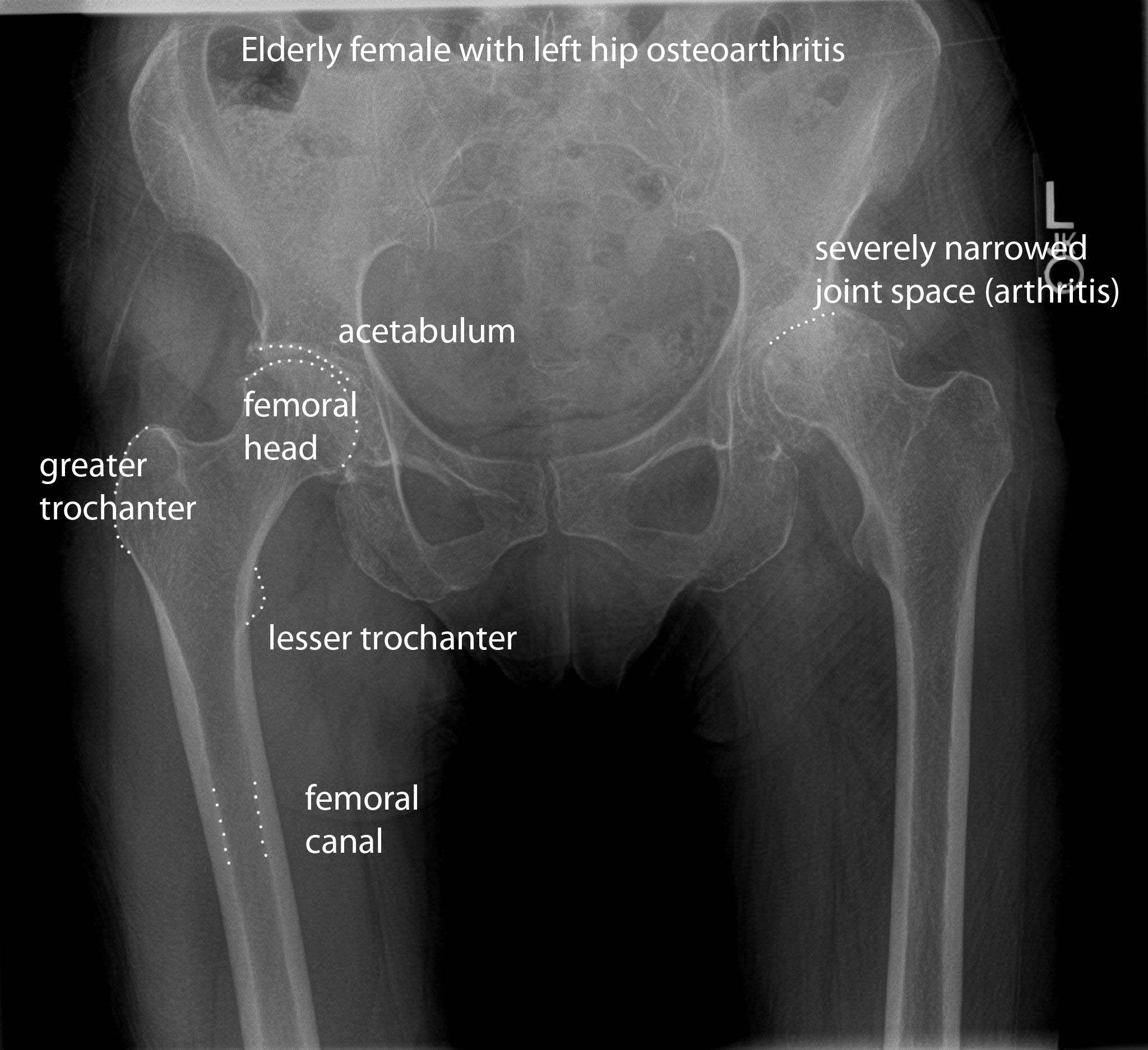 pelvis radiographic anatomy Normal vs OA | Radiographic anatomy ...