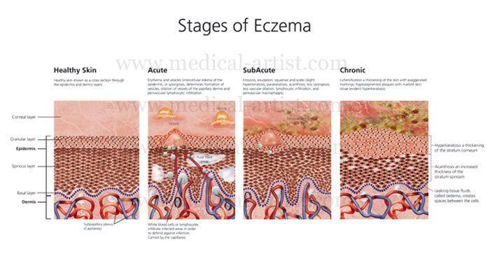 Acute Eczema Natural Treatments