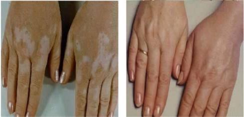 Vitiligo is mainly two types Segmental Vitiligo and nonsegmental