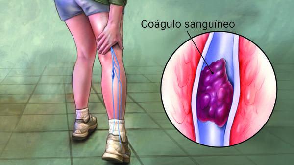 como curar una trombosis venosa profunda